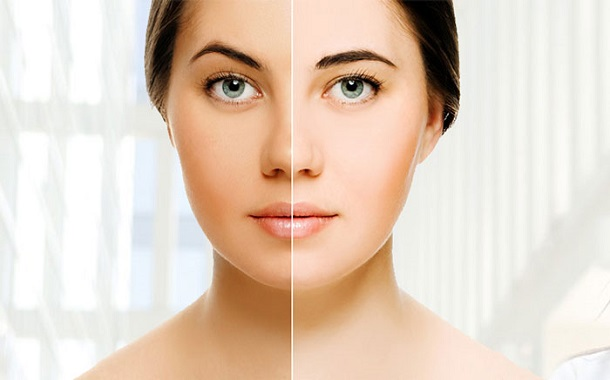 Skin Whitening Treatment for a Fair and Glowing Skin
