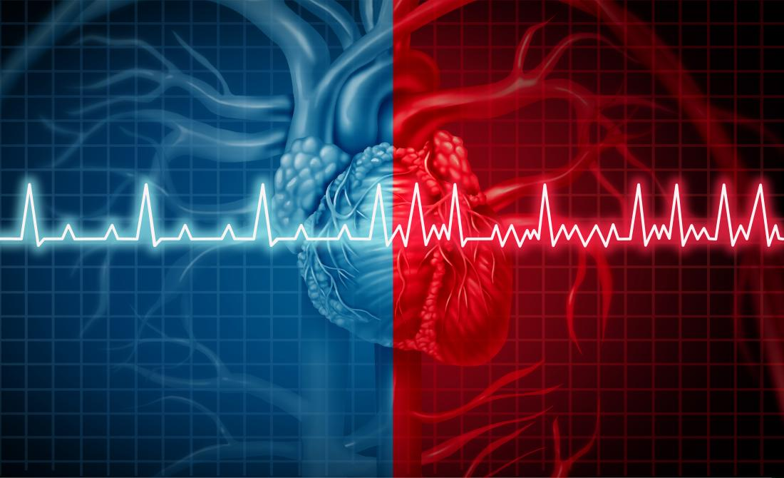 Understanding the Risks Associated with Atrial fibrillation