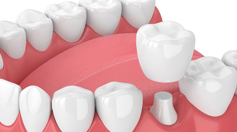 Important Facts Everyone Should Know About the Dental Crown