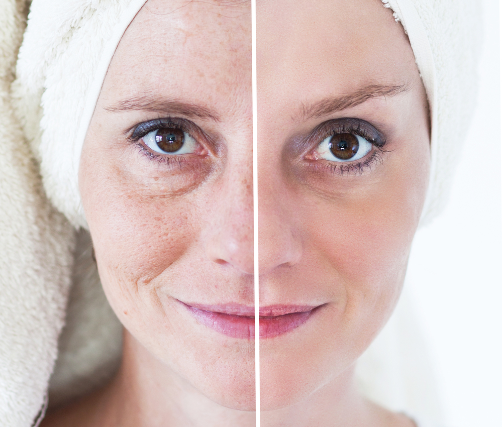 Different Type of Medical Treatments – Know How to Improve Fine Wrinkles