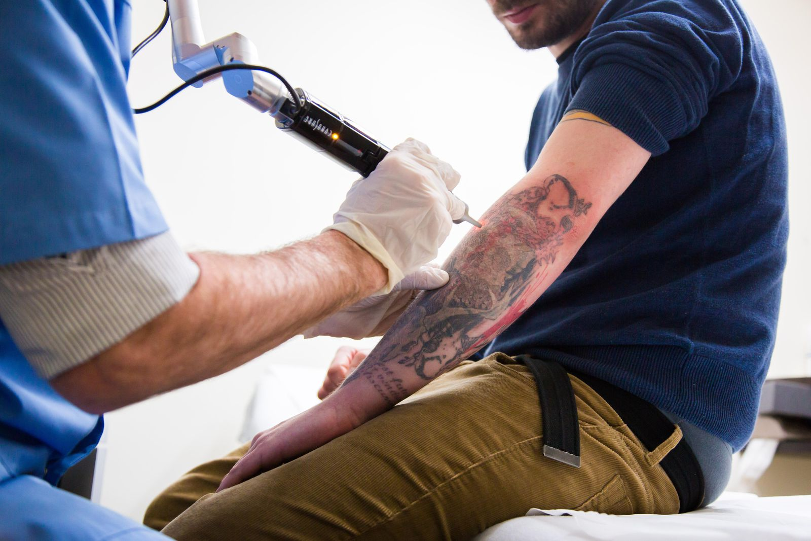 Answering Top Five Questions About Tattoo Removal!