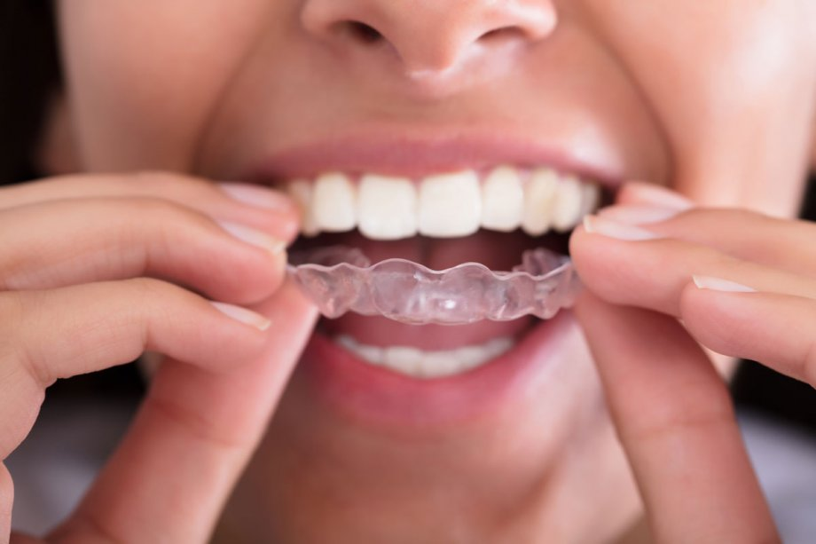 Get Braces to Correct Cosmetic or Biting Problems