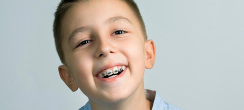 Braces for Kids: How Much They Cost