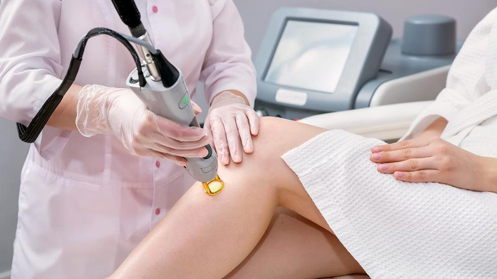 Keep These Things in Mind if are Considering Laser Hair Removal
