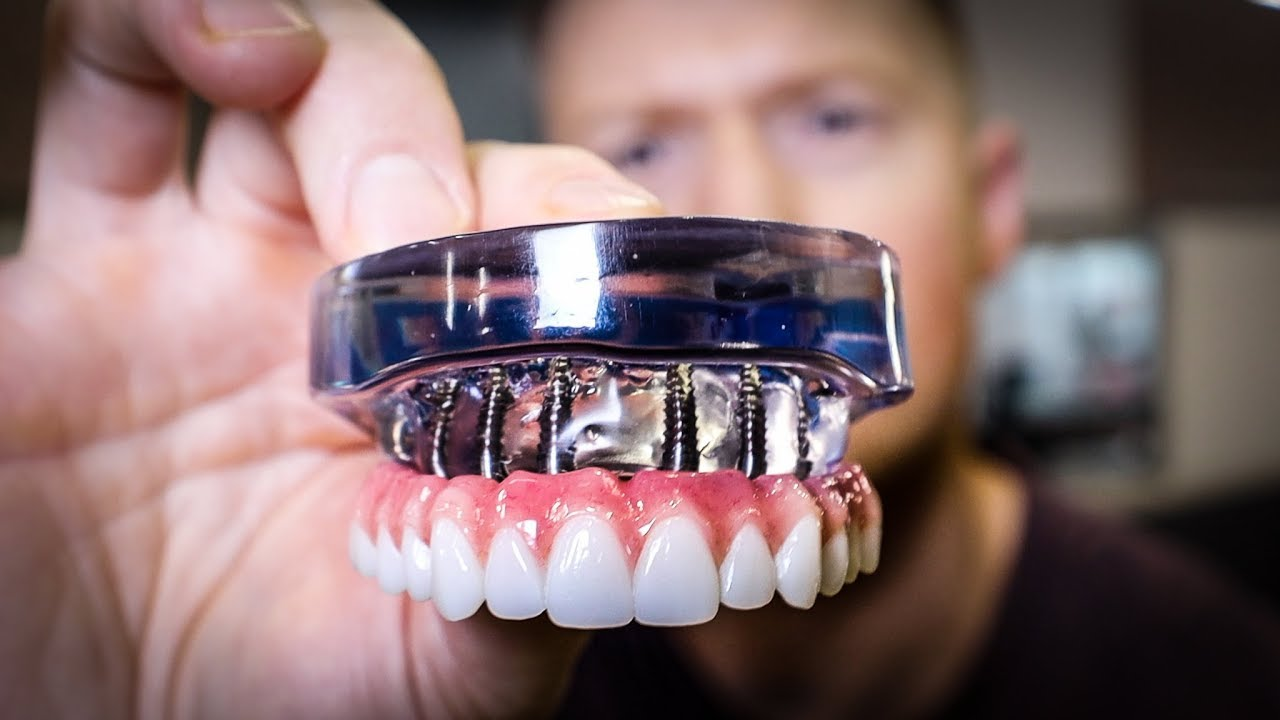 Dental Implants Vs. Dentures: A Guide To The Basics!