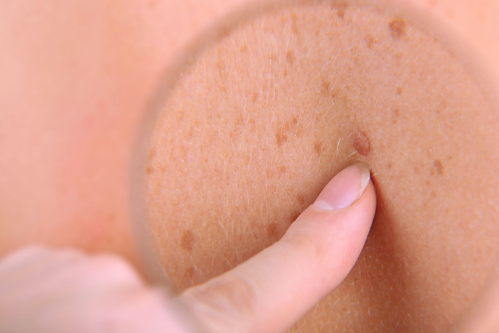 Taking Care of Your Skin Against Skin Cancers